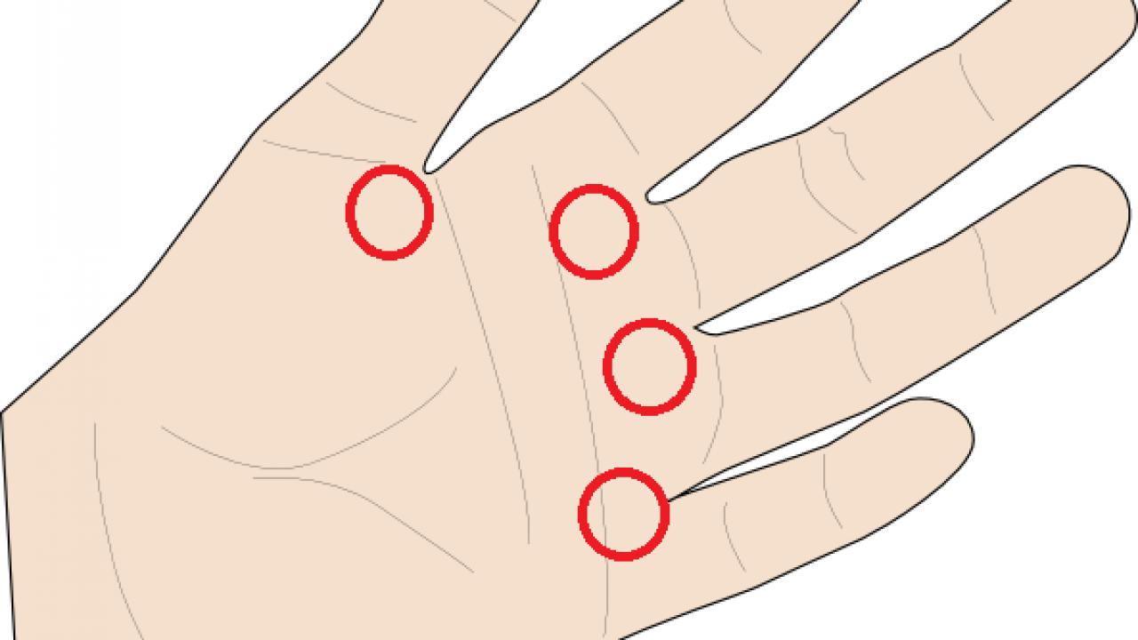dureri de deget